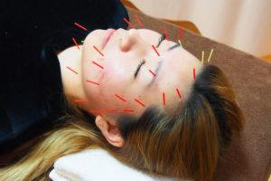美顔鍼(女性)